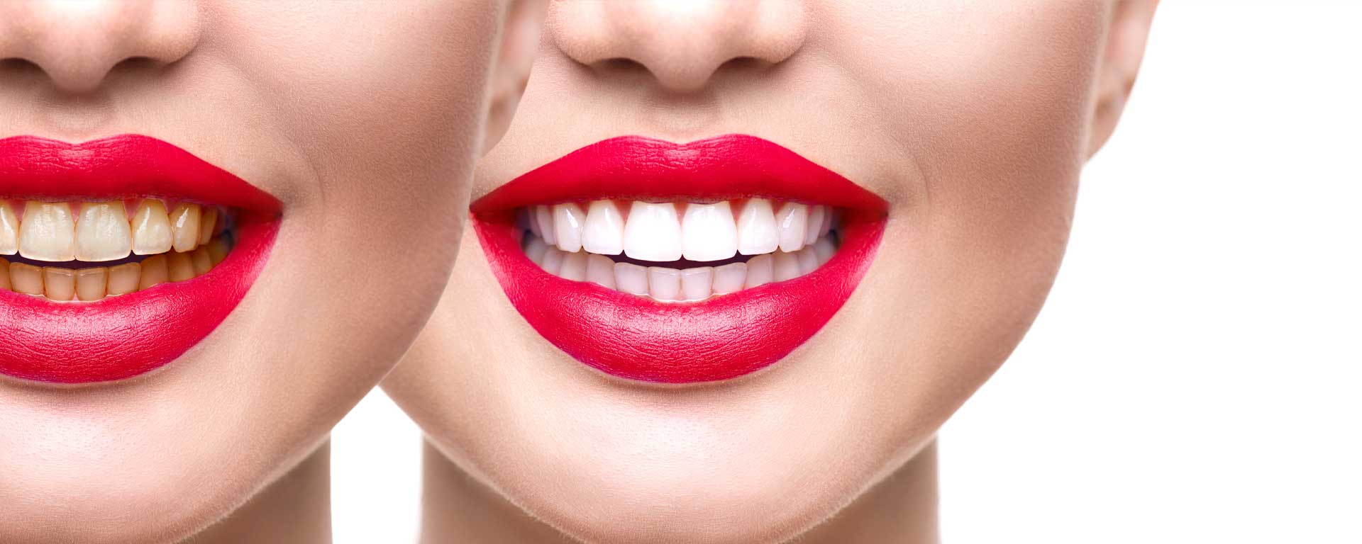 Teeth Bleaching and Whitening at Eden Shores Dental Care